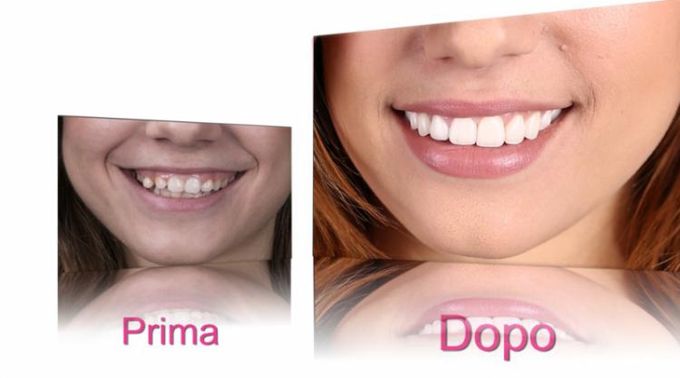 Faccette dentali anche in Liguria