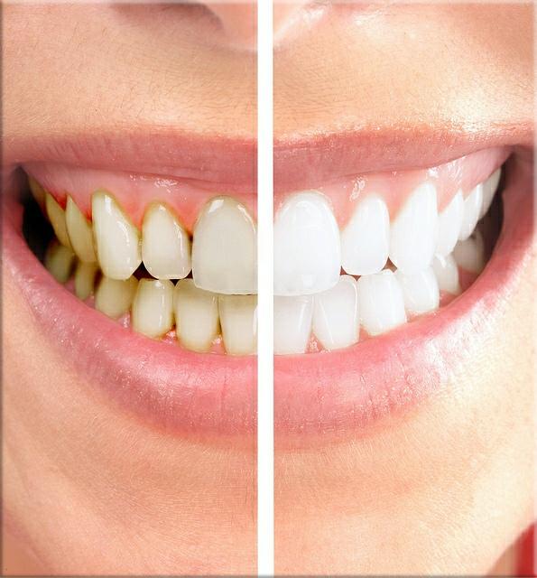 faccette-dentali 2