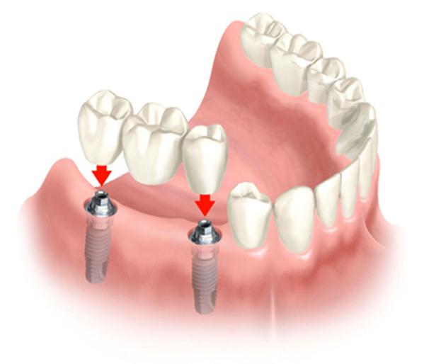 impianti-per-denti