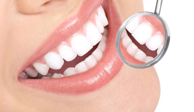 impianto dentale