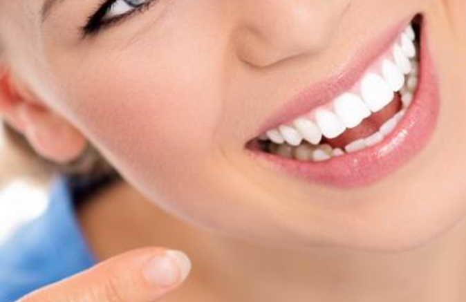 riavere uno splendido sorriso