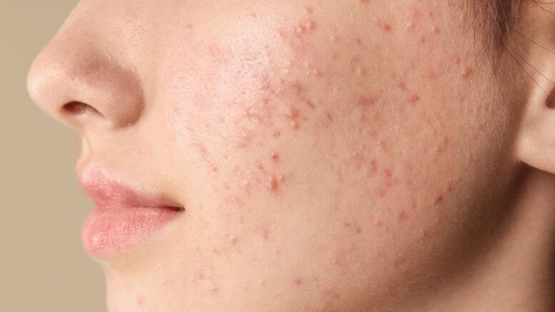 acne-giovanile