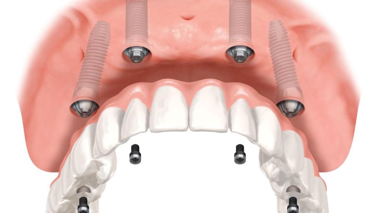 impianti dentali pescara